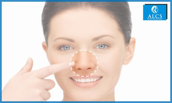 Rhinoplasty surgery in Jaipur