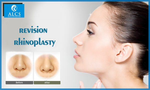 Revision rhinoplasty in Hyderabad