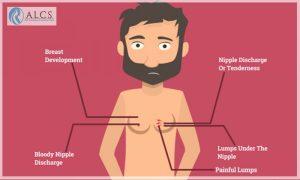Gynecomastia surgery in Jaipur