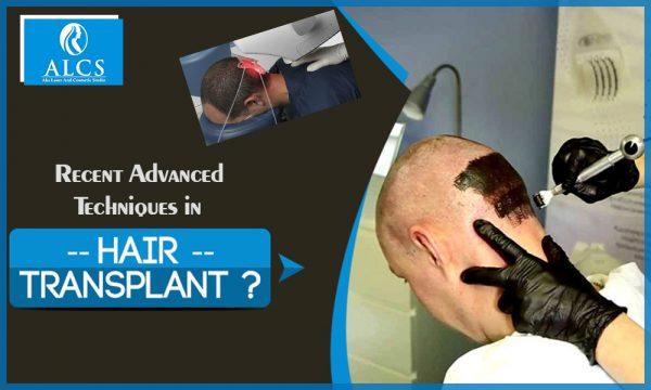 Advancement in Hair transplant techniques