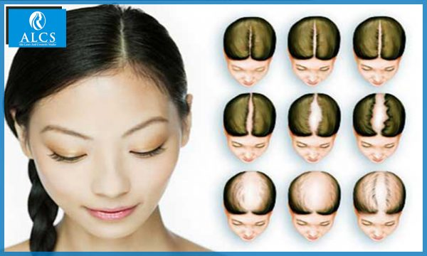 Hair loss in Jaipur