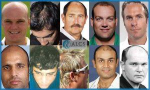 hair transplant- cricketers