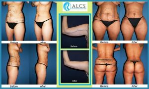 liposuction-surgery-cost-jaipur