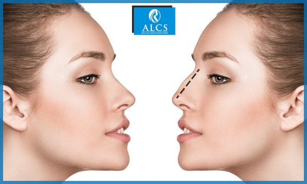 Rhinoplasty surgery in Jaipur