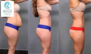 Liposuction surgery in Jaipur