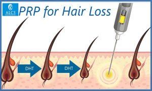 hair treatment cost in Jaipur