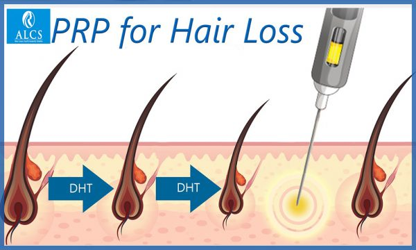 hair treatment cost in Jaipur