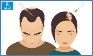 best hair transplant clinic in Jaipur