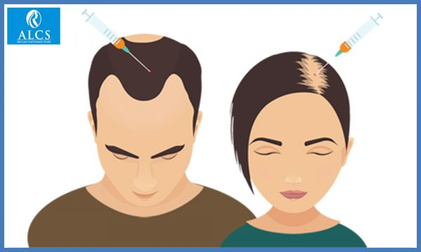 best hair transplant clinic in Jaipur