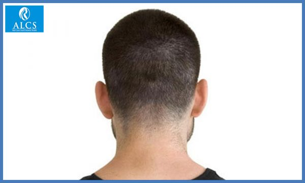 hair transplant price in Jaipur