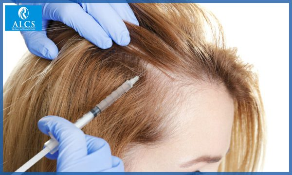 best hair transplant doctor in Jaipur