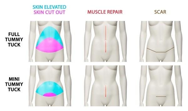 Tummy Tuck Abdominoplasty Jaipur - ALCStudio